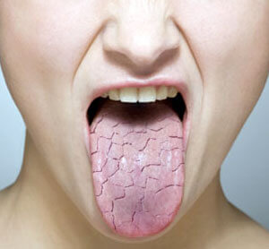 fixing dry mouth