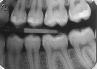Are Dental X-Rays Safe? See These Diagrams