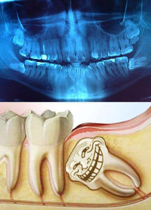 Funny wisdom tooth x-ray images