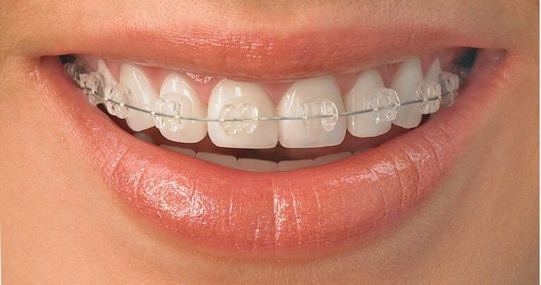 Do Braces Hurt and Which Type of Braces Hurts More?