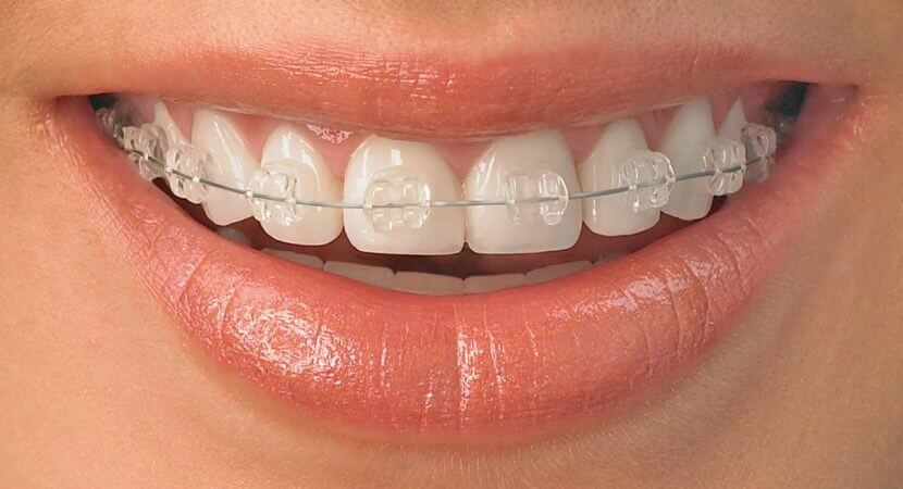 do invisible braces hurt more than normal braces