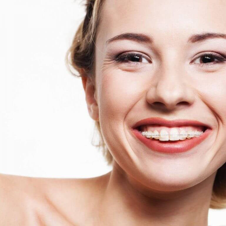 Can You Straighten Teeth Without Braces?