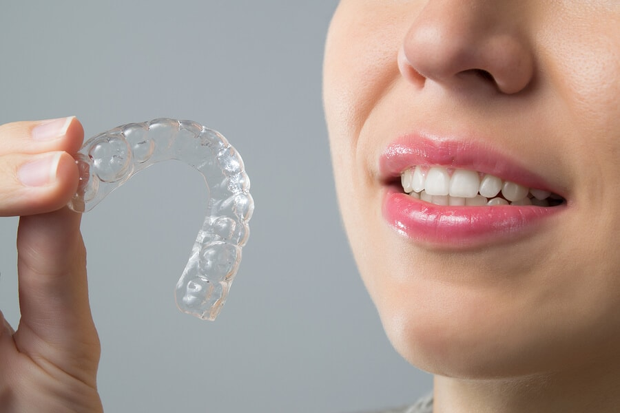 do i need to keep invisalign trays