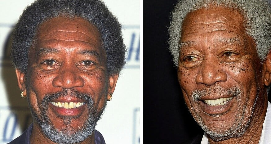 morgan freeman celebrity teeth makeover before and after