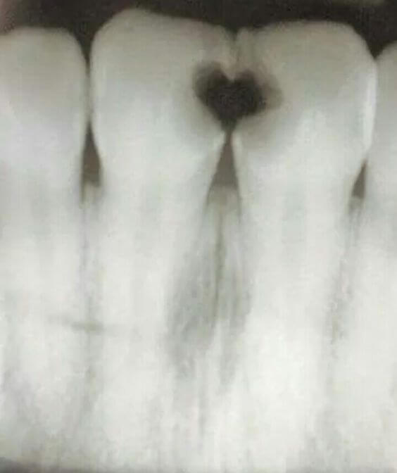 love heart decay teeth