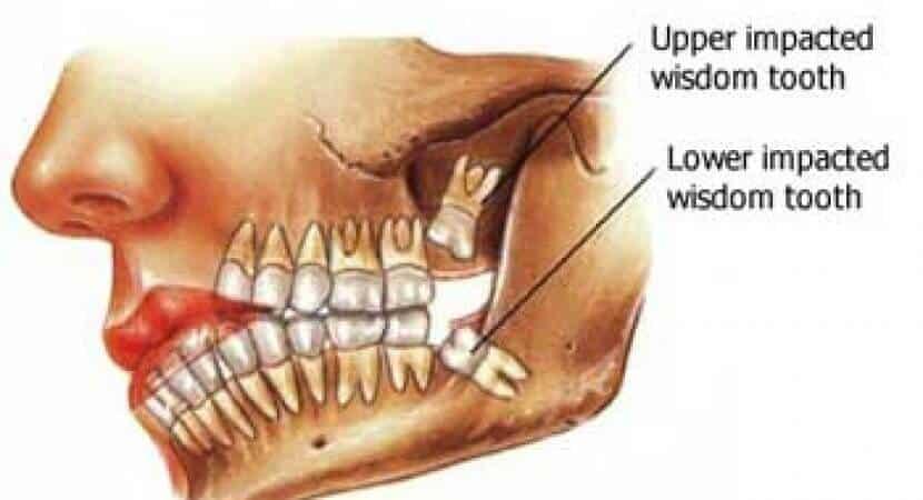 how many wisdom teeth