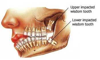 adult wisdom teeth