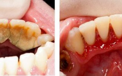before and after tooth clean