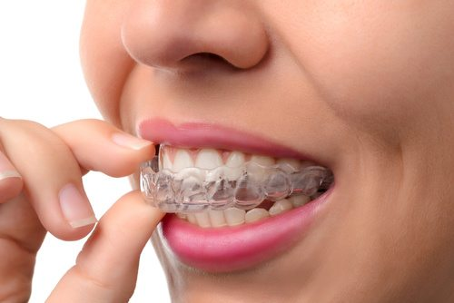 Are Invisalign results permanent? What you need to know to keep your teeth straight FOREVER