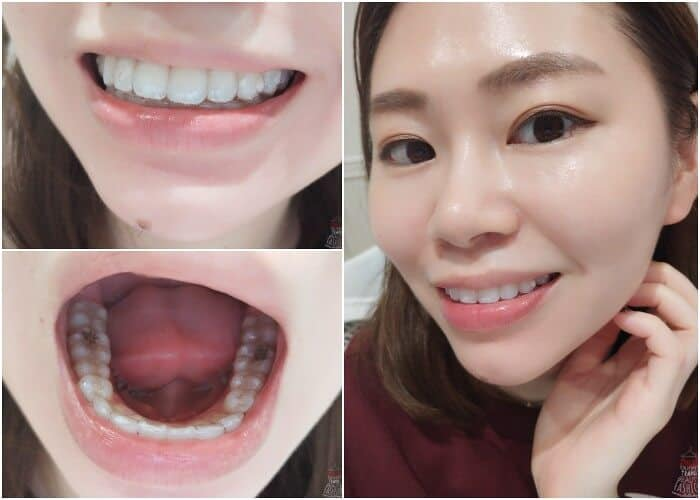 I Have Loose Teeth During Invisalign Is This OK?