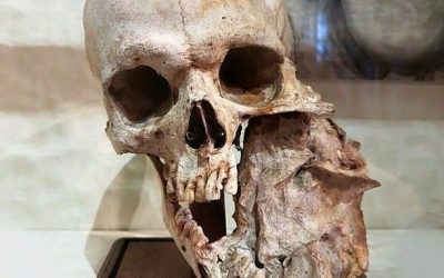 a skull with a large tumour